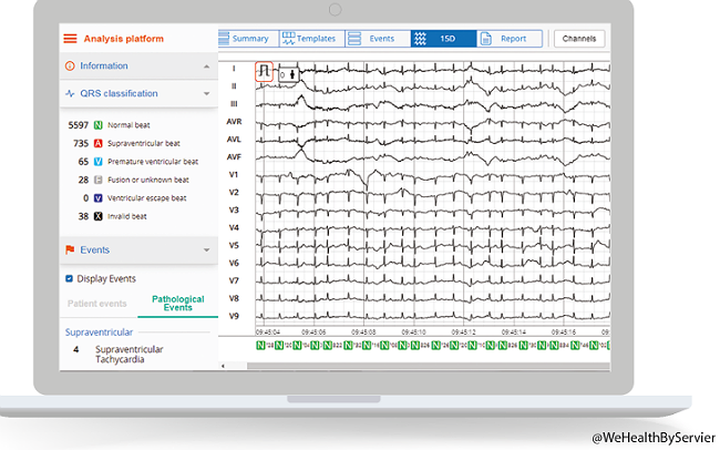Plateforme d'analyses cloud Cardioskin (crédit : WeHealth by Servier)